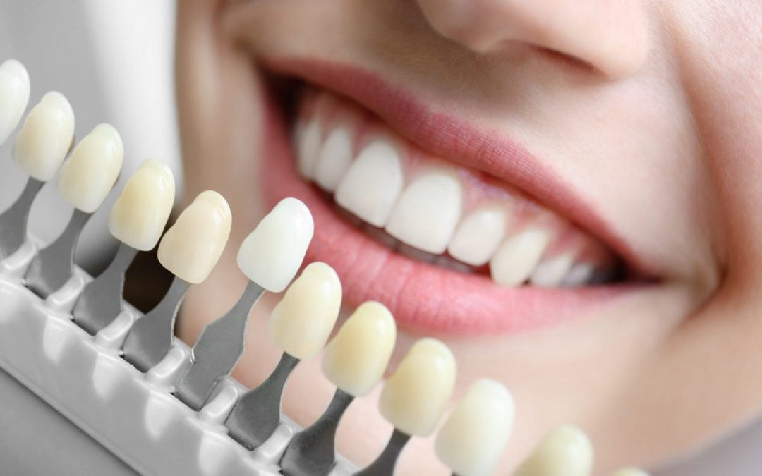 What is it Like to Get Dental Implants?