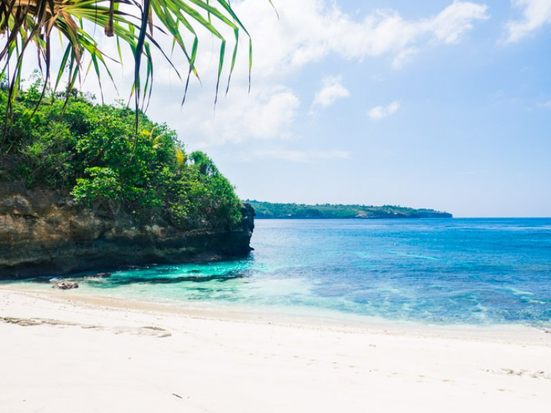 Bali – Making the Most of Medical Travel